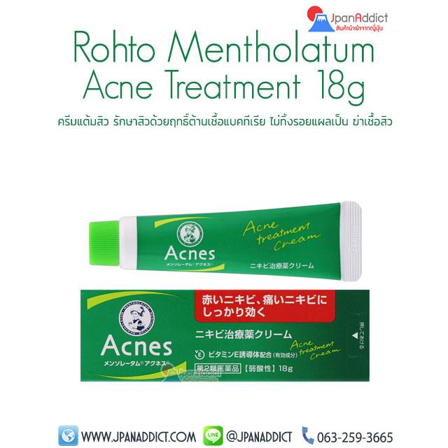 Rohto Mentholatum Acne 18g Treatment